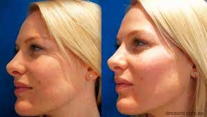 Filler-for-cheek-augmentation
