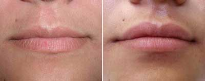 Filler-for-lip-augmentation