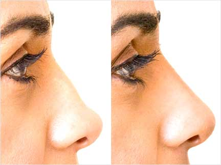Filler-for-nose-reshaping