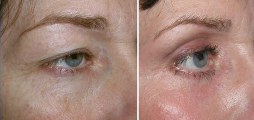 Lasers/Ultherapy/Microneedling