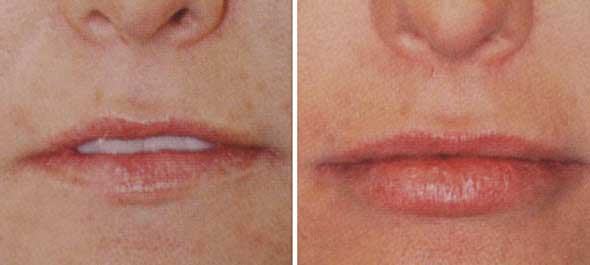 Perioral /Lip rejuvenation